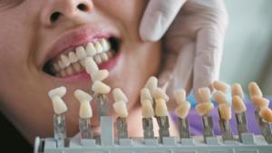 fogpótlás gáspár dental