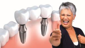 implantológia Gáspár dental